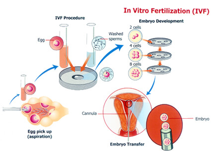 the technique of invitro fertilization with embryo transfer Learn about the in vitro process from ccrm from in vitro fertilization  fertilization outside of the body with subsequent transfer of the embryo back into.